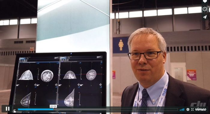 Prof. Frauenfelder talks about the possibilities of breast CT