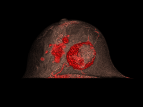 MULTICENTRIC BREAST CANCER | 3D volume rendering post-contrast