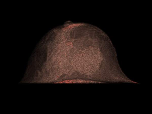MULTICENTRIC BREAST CANCER | 3D volume rendering - pre-contrast