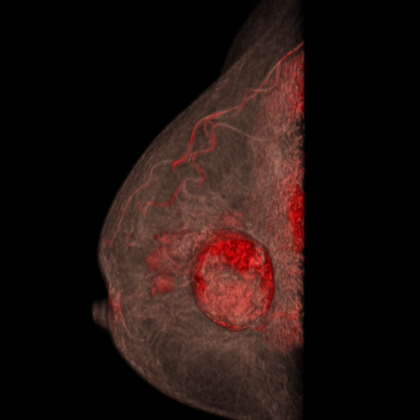 MULTICENTRIC BREAST CANCER | 3D volume rendering - post-contrast (sagittal view)